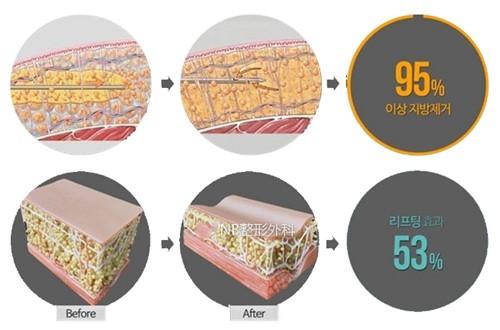 韩国NB整形医院吸脂效率图示