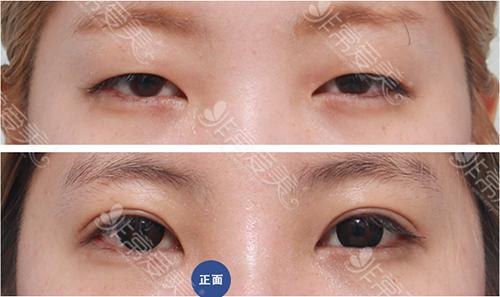 佳轮韩医院双眼皮案例