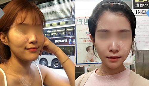 韓國菲斯萊茵輪廓手術前后對比照片