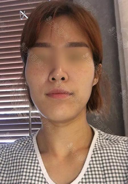 韩国菲斯莱茵轮廓手术术前照片
