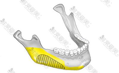 韓國菲斯萊茵下頜角手術卡通示意圖