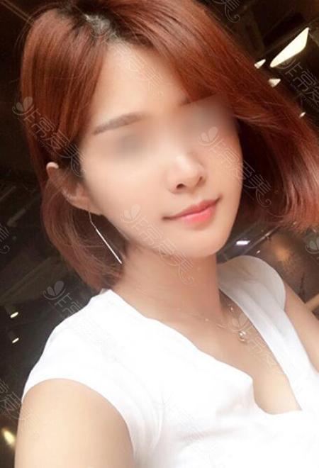 韓國菲斯萊茵顴骨+下頜角手術30天照片