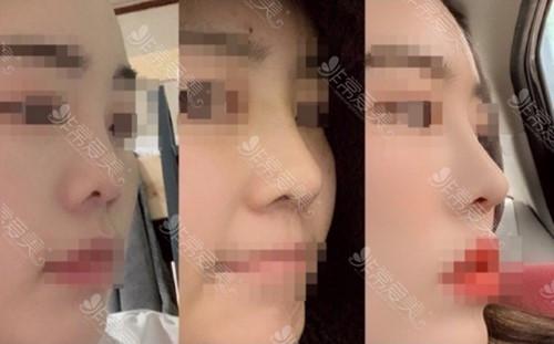 韩国MIND整形医院隆鼻案例图