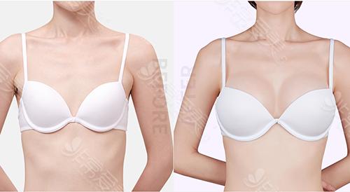 韓國原辰整形醫院隆胸案例
