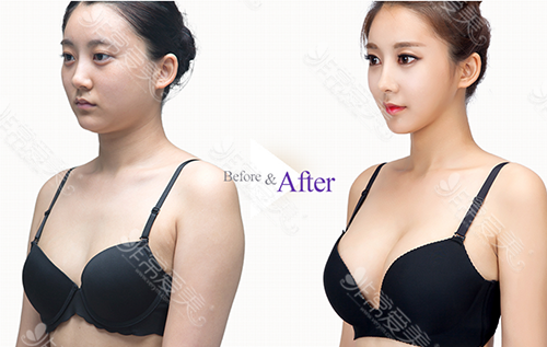 韓國德萊茵整形醫院隆胸案例