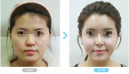 韓國一路美面部輪廓手術前后對比圖