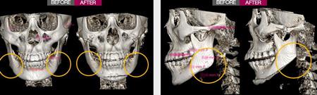 一路美下頜角手術前后對比差別很大
