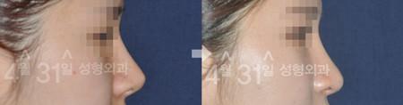 4月31日醫院鼻尖案例