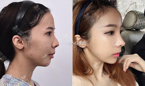 韓國gng整形醫院隆鼻案例圖