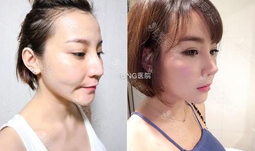 韓國GNG無假體隆鼻案例圖