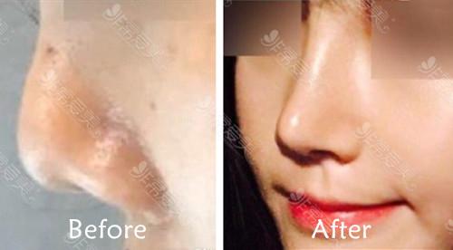 韓國gng整形醫院鼻修復案例