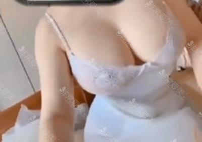 泰國隆胸手術效果圖
