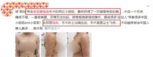 泰國隆胸手術網友評價圖