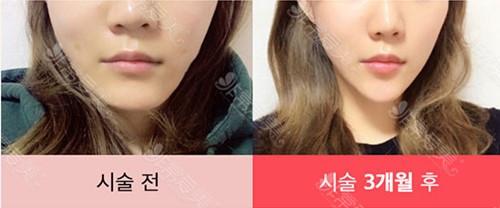 韩国raffine整形外科面部溶脂图