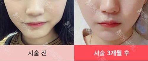 韩国raffine整形外科脸部溶脂图