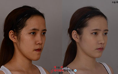 韩国JJ洪镇柱整形外科双鄂整形案例图
