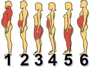 冷冻脂肪术适合局部肥胖的人群