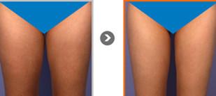 冷冻脂肪术瘦大腿效果立竿见影