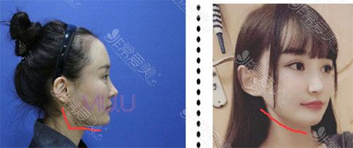 韩国VIUU轮廓手术案例图片