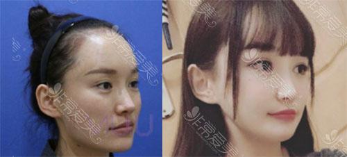 韩国VIUU崔宇景颧骨手术案例图片