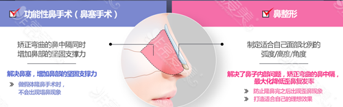 功能性鼻手术