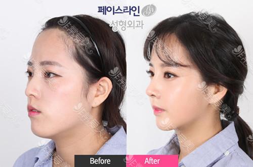 韩式小翘鼻适合哪种人