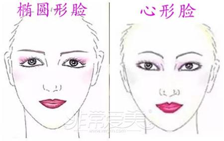韩式小翘鼻适合哪种人图