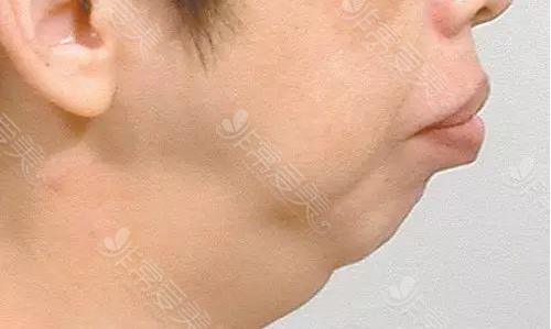 下颌发育不良情况