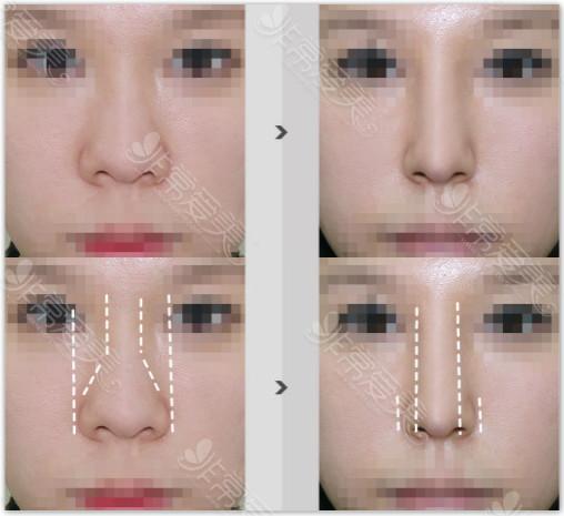 韩国水滴鼻整形对比图
