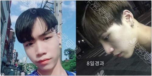 韩国theway整形外科男士鼻整形效果对比