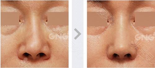 鼻部假体移位修复案例