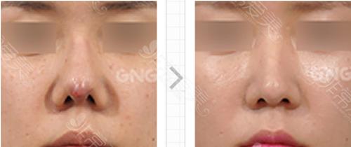鼻部炎症、皮肤坏死修复案例