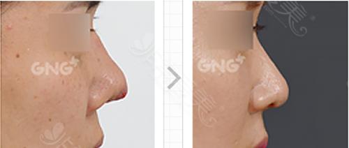 鼻部假体外露修复案例