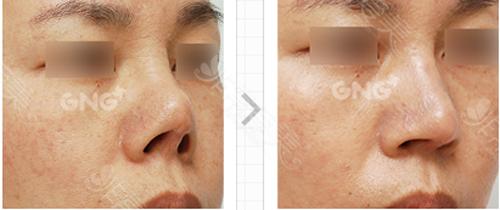 鼻部挛缩变形修复案例