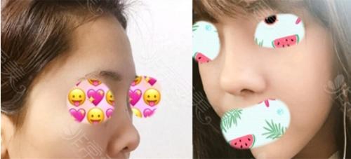 鼻修复只取假体不取耳软骨可以吗