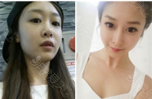 韩国GNG医院鼻修复案例