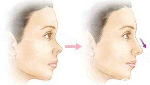 挛缩鼻修复安全吗
