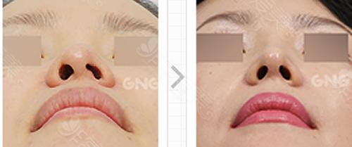 鼻孔挛缩变形修复案例