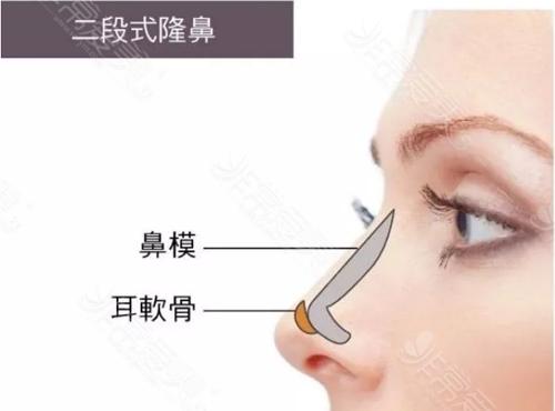 分段式隆鼻有什么优点?