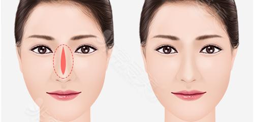 隆鼻皮肤变薄要怎么修复