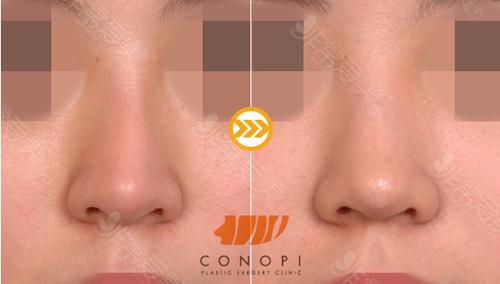 高诺鼻医院鼻修复效果明显吗