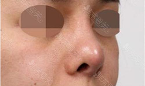 鼻部皮肤薄案例图