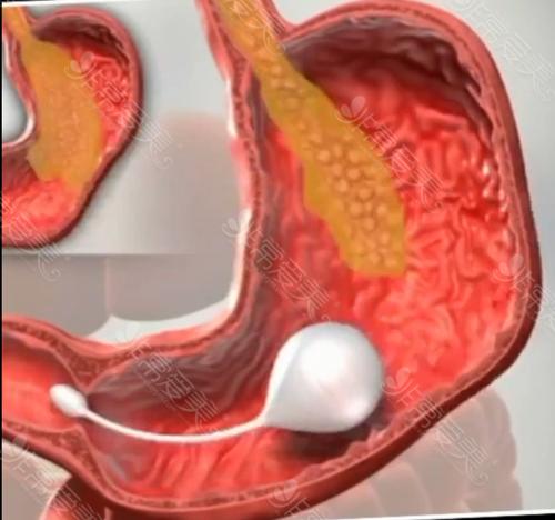 韩国兴起的胃气球减肥有多少人做?她们常选哪些减重方法
