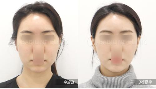 韩国babiline医院吸脂女院长在当地出名吗?她的资历曾被公开