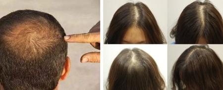 韩国久长毛发移植医院植发特色是什么?价格贵不贵!