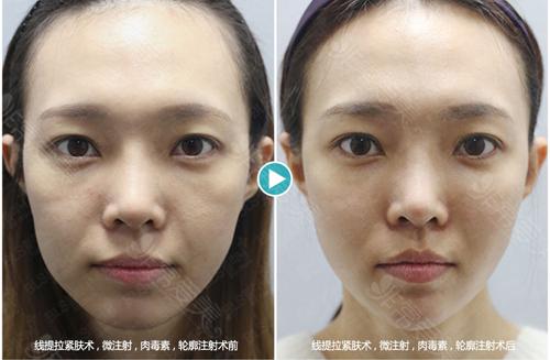 韩国bls皮肤科和maypure林二石哪个才是韩国口碑皮肤科?
