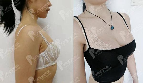 韩国普罗菲耳隆胸手术效果