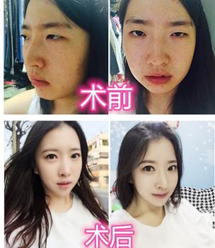韩国灰姑娘整形外科眼综合手术对比图