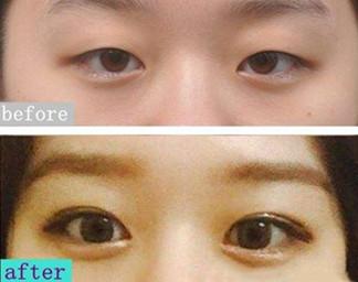 韩国绮林整形外科眼综合效果怎么样