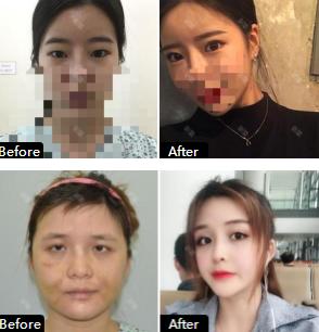 韩国绮林整形外科眼综合前后对比图
